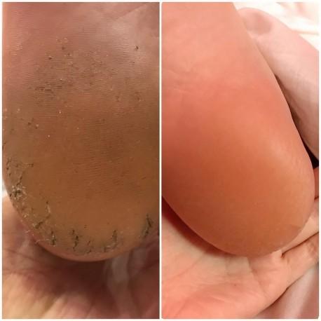 Носочки для пилинга стоп отзывы Tony Moly Changing U Magic Foot Peeling Shoes